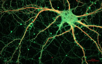 Xl cultured rat hippocampal neuron  24327909026